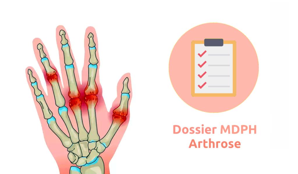 dossier mdph arthrose